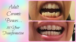 Adult Braces Transformation | Time Lapse + Extractions Before and After