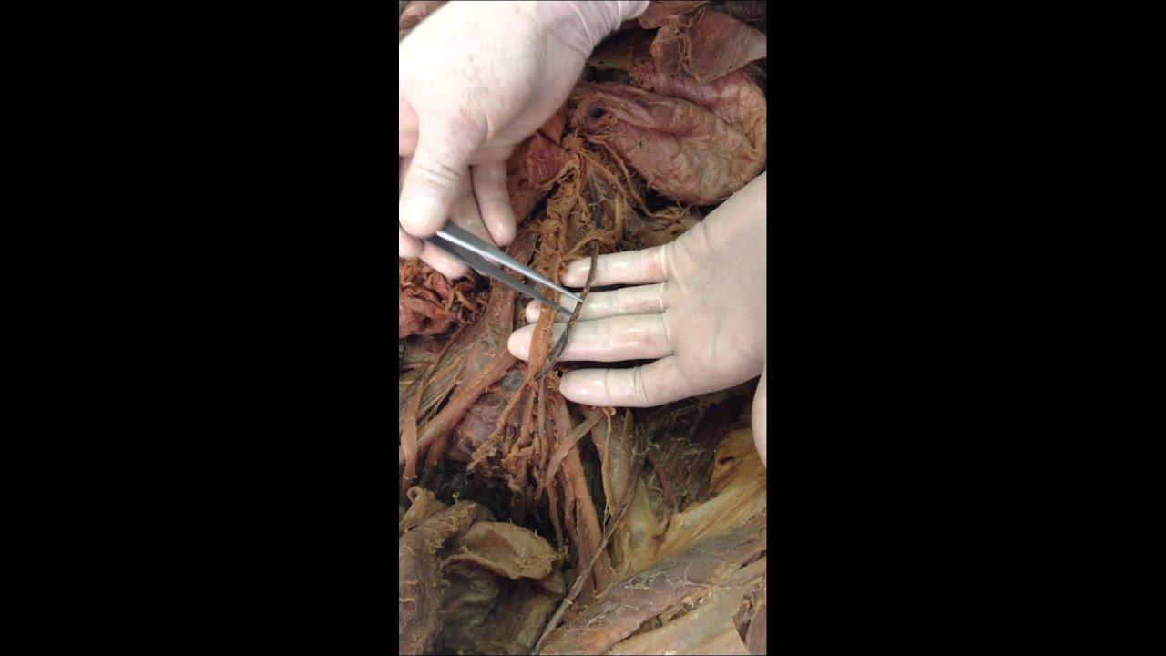 Examen Final practico anatomia 2014 - YouTube