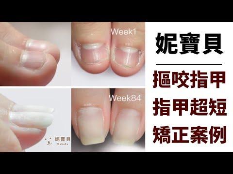 嚴重咬手指的矯正例子-指甲超短 甲床萎縮 指肉外露 指緣紅腫發炎
