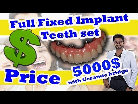 All - on - 4 Implant Cost /Nobel biocare/2019/ Cheapest All on 4 in the  world/Dental tourism India