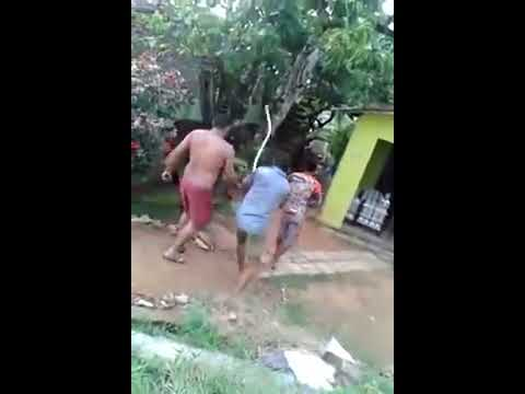 Pitbull attack dog in streets of Brasil