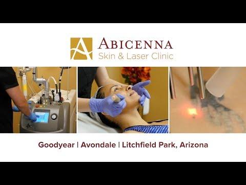 laser-hair-removal-goodyear-az-|-abicenna-skin-and-laser-clinic
