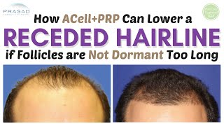 How a Receding Hairline can be Saved and Restored if Treated in Time