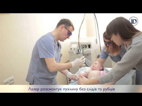 Лазерное лечение гемангиом