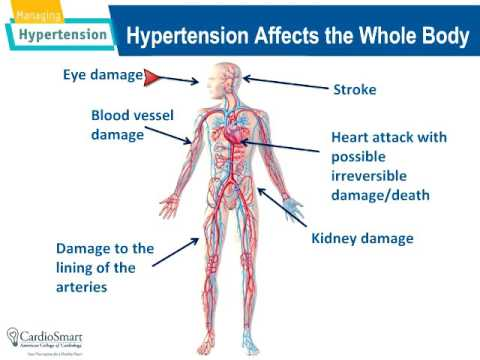 stroke and high blood pressure High blood pressure and stroke: high blood pressure (hypertension) is the most important known risk factor for stroke high blood pressure can cause damage to blood vessel walls, which may eventually lead to a stroke you can control your blood pressure by changing your diet and lifestyle.
