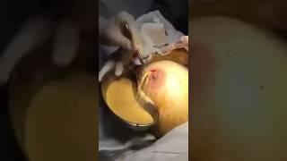 Operasi payudara(2)