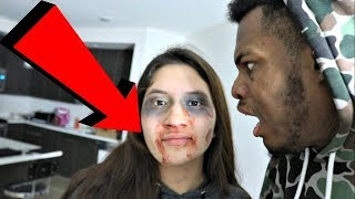 I GOT JUMPED PRANK ON BOYFRIEND GOES WRONG!!! THE COPS CAME OMG!!!