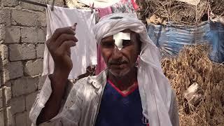 إصابة مواطن برصاص مليشيات الحوثي داخل منزله في مدينة حيس