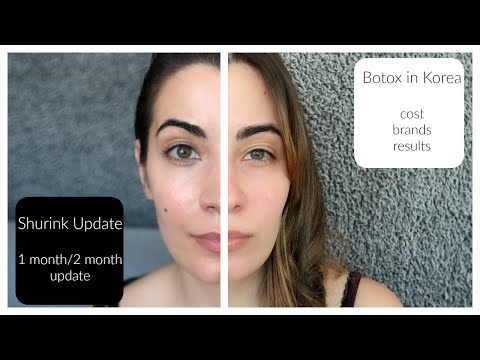 Botox in Korea and Shurink Treatment Updates - YouTube