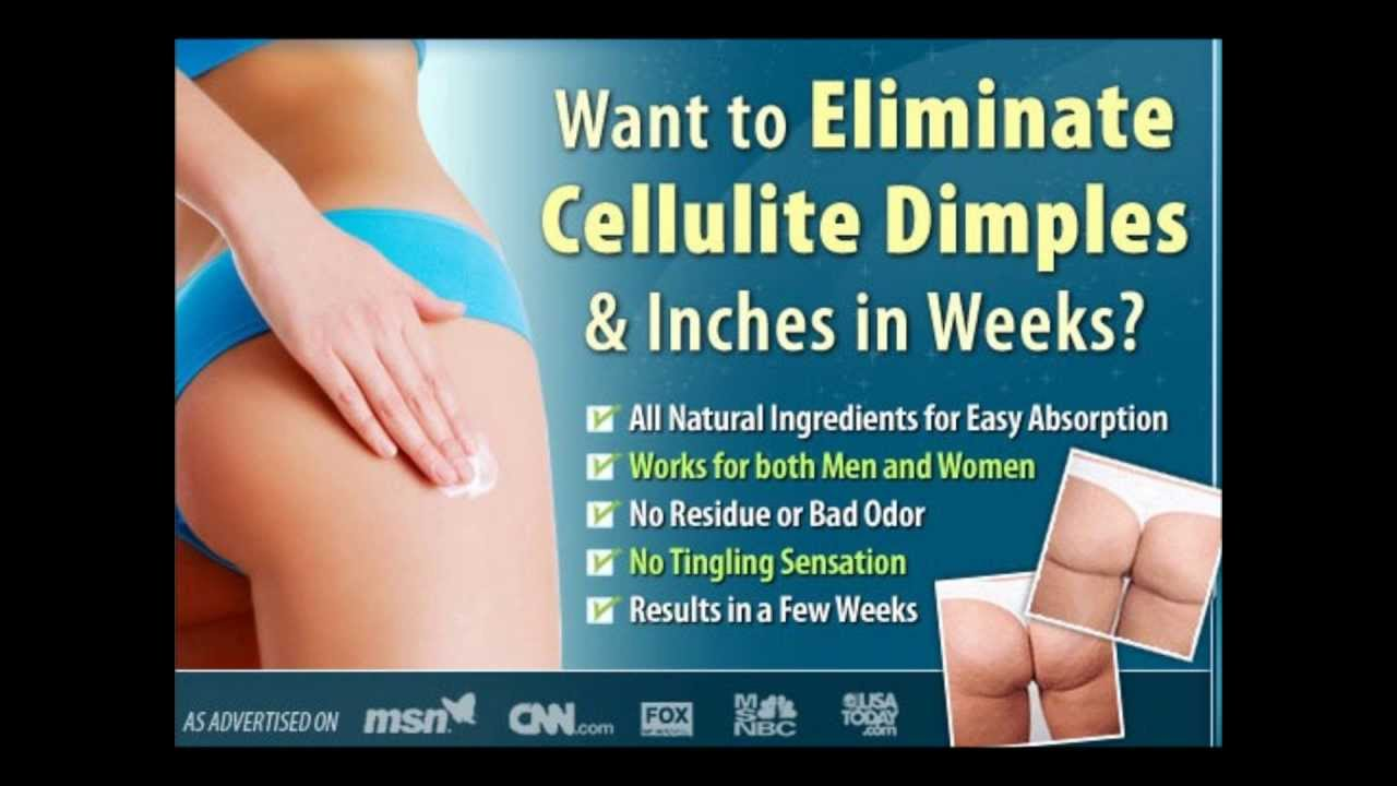 Cellulite Solution By Dermology Treatment Cream How To Get Rid