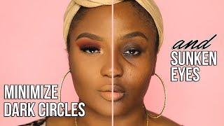 Makeup for dark under eye circles & sunken eyes | BAG LADY!