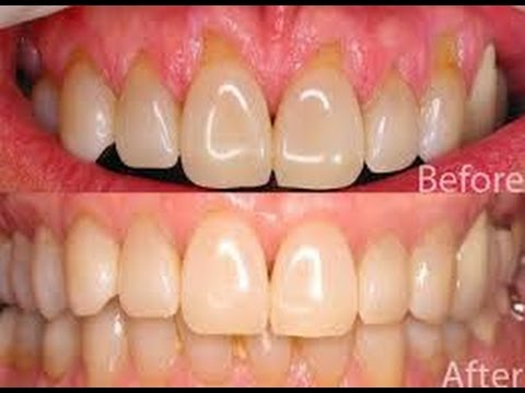 Home Remedies To Reverse Receding Gum Line Without Surgery