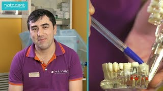 видео Зуб мудрости: прорезывание, лечение и удаление