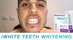 Does iWhite Instant Teeth Whitening Work? | Meet Chris