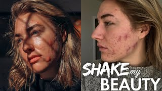 Severe Acne Made Me Feel Unworthy Of Love | SHAKE MY BEAUTY