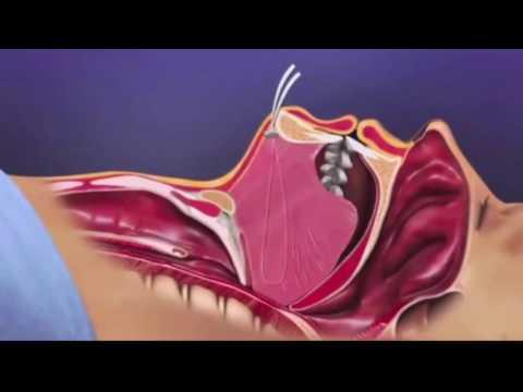 Horlama ve Uyku Apnesi Ameliyatı ( Yeni Yöntem)
