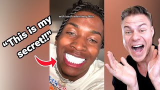 How To Get Tнe Whitest Teeth In The World! Orthodontist Reacts!