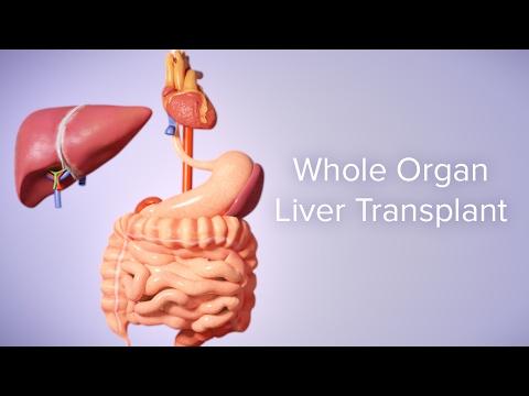 Liver Transplant | Cincinnati Children's