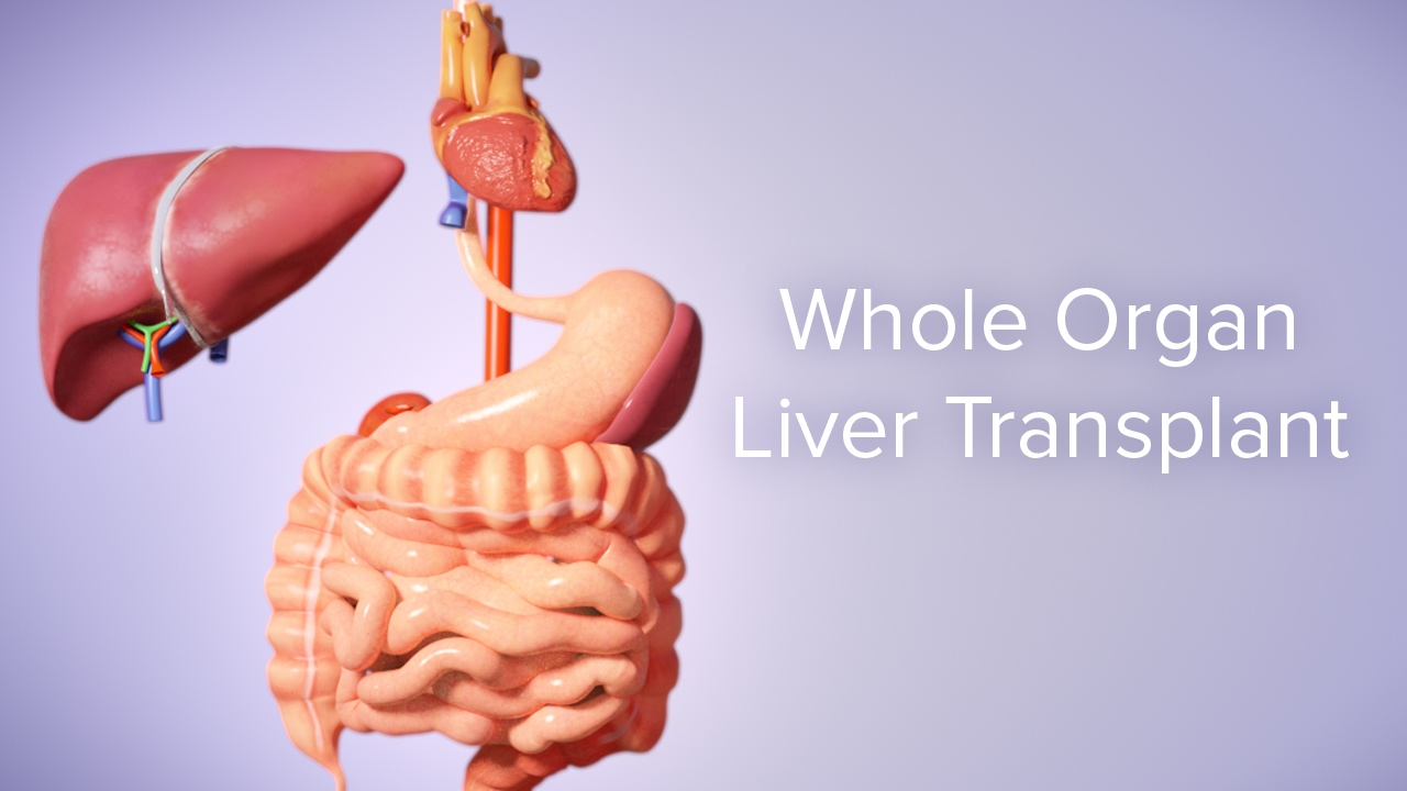 Liver Transplant Cincinnati Childrens Youtube
