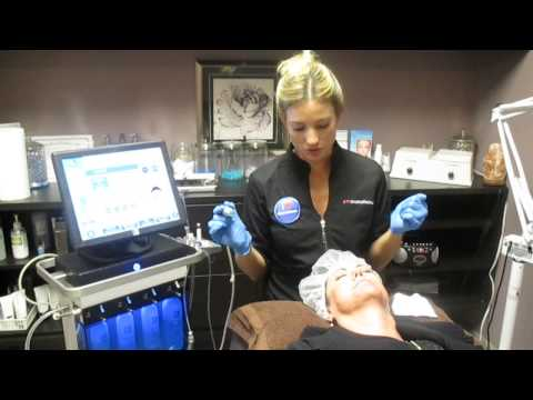 Microneedling with Hydrafacial™ MD at Magnolia Medspa
