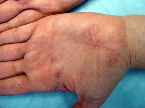 manchas por sifilis imagenes