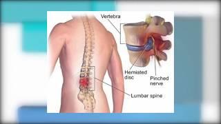 De espalda izquierdo dolor lumbar
