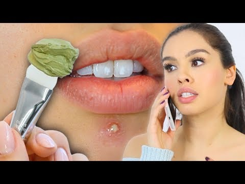 10 SKINCARE MISTAKES YOURE MAKING *life changing*