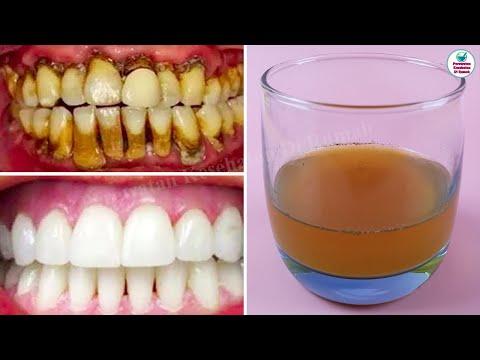 obat-kumur-ini-membantu-menghilangkan-karang-gigi-dengan-sangat-mudah-dalam-3-menit