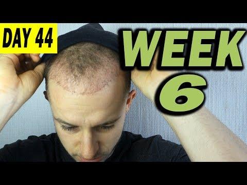 FUE Hair Transplant 6 weeks (post op) Istanbul, Turkey