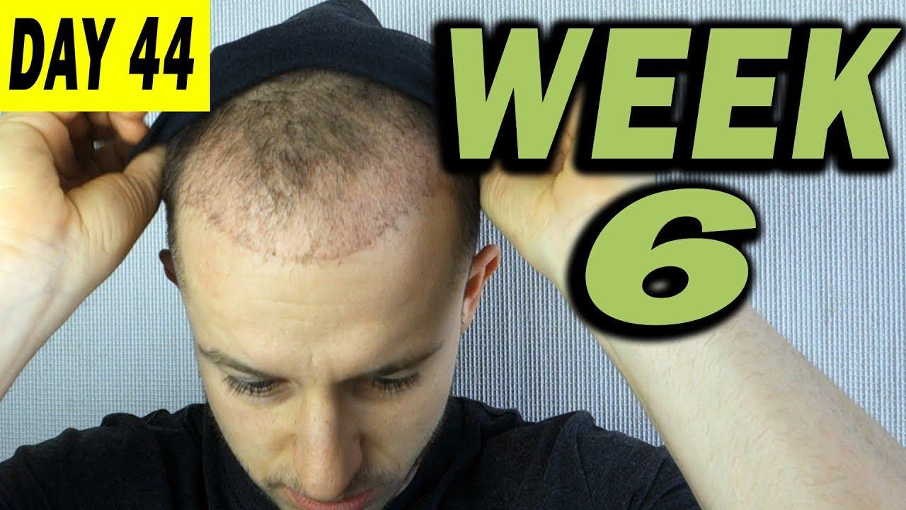 Fue Hair Transplant 6 Weeks Post Op Istanbul Turkey Youtube
