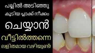 പല്ലിൽ അടിഞ്ഞു കൂടിയ പ്ലാക്ക് നീക്കം ചെയ്യാൻ ||Health Tips Malayalam