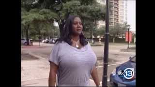 Biggest Natural Breasts in Texas – 36NNN Breast Reduction by Dr. Franklin Rose