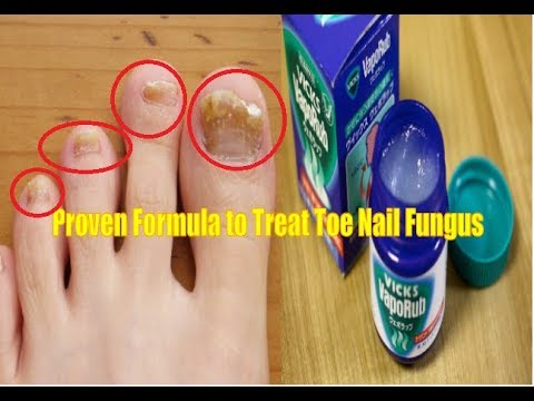 How to treat toe nail fungus with vicks vaporub (100% Proven Formula)
