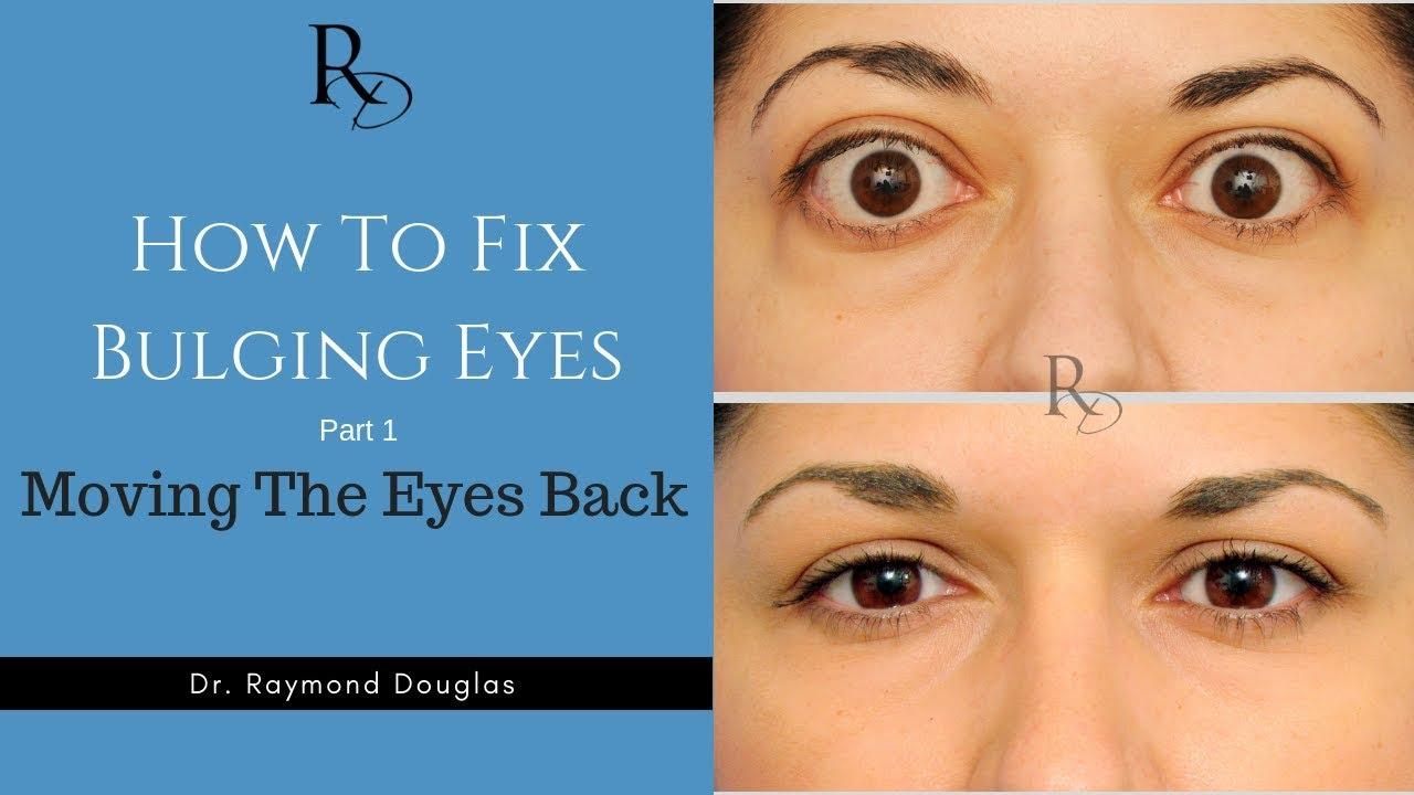 How To Fix Bulging Eyes Part 1 Moving The Eyes Back Youtube