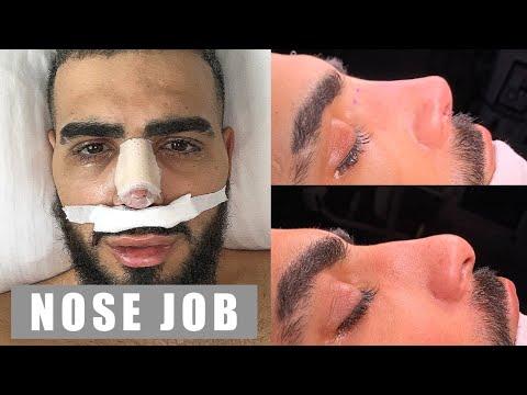 i-got-a-nose-job!!!!-plastic-surgery---rhinoplasty-istanbul-turkey-2020