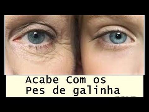 ACABAR COM AS RUGAS NA AREA DOS OLHOS!  PES DE GALINHA, PALPEBRA CAIDA E CLAREAR OLHEIRAS RAPIDO!