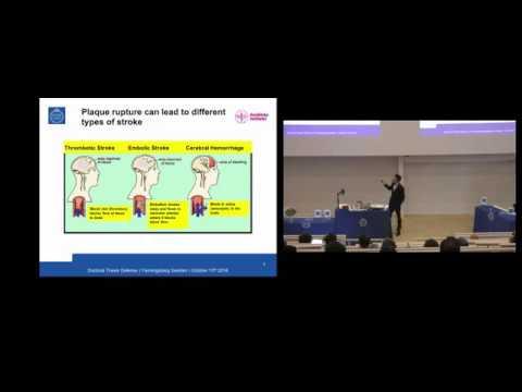 Erik Widman PhD Defense - KTH Royal Institute of Technology and Karolinska Institutet