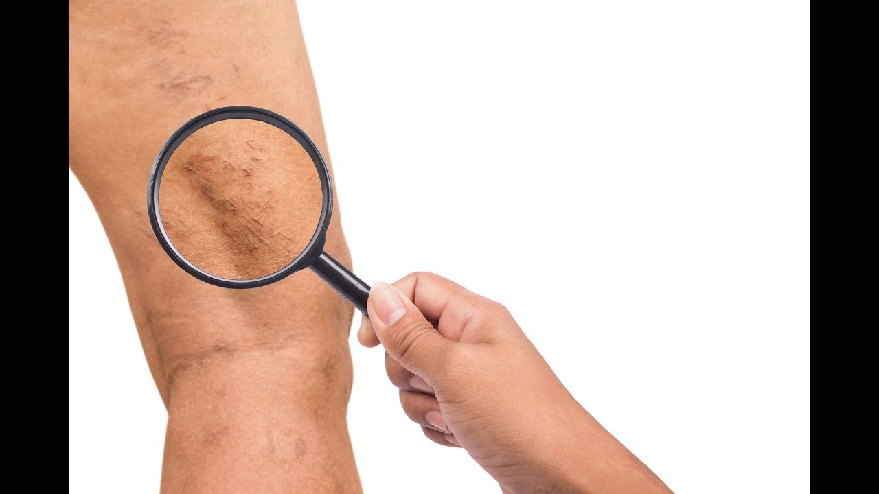 tratament pentru varice ascunse