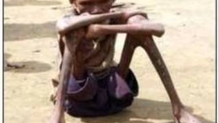 UNICEF: Stop World Hunger