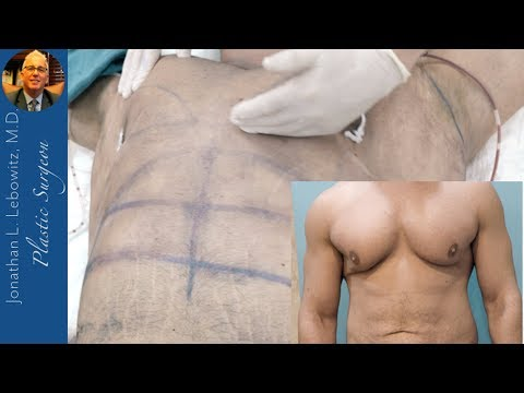 Why Chose Dr. Lebowitz? Gynecomastia Hi-Def Chest TRANSFORMATION, The Long Island VaserLipo Center