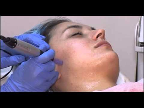 Varice mezoterapie varice