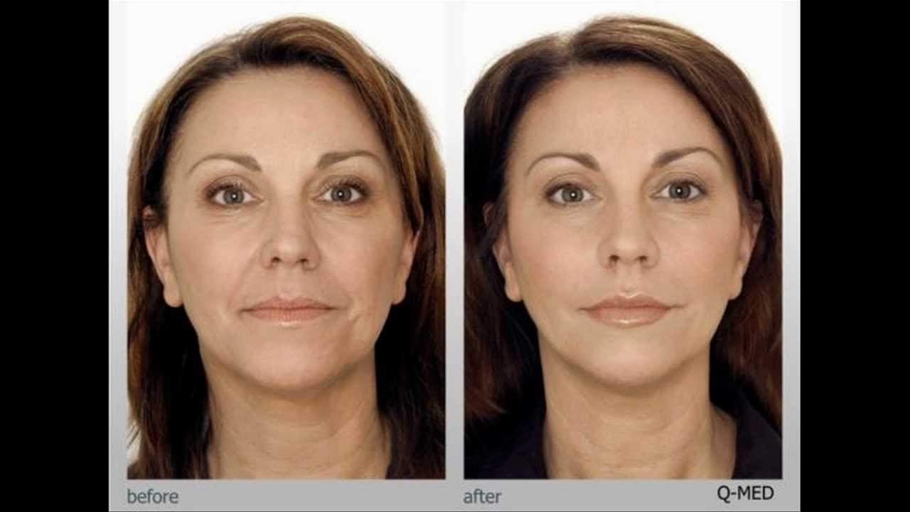 Home microdermabrasion results before and after pictures.