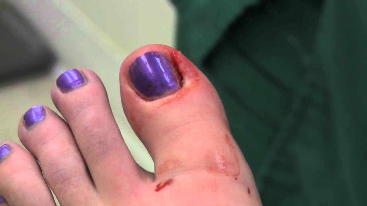 how to get rid of a ingrown toenail youtube