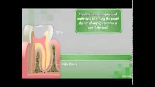 GuttaFlow2 D- Root Canal Filling System