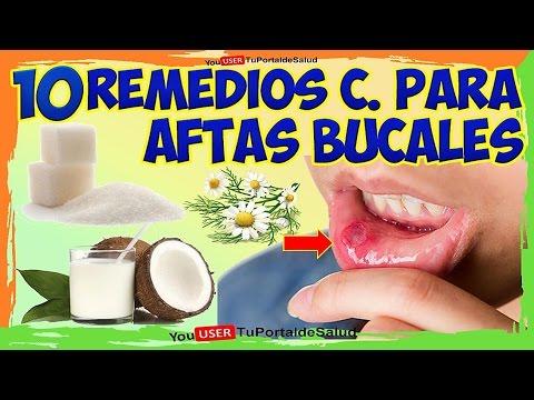 Remedios para llagas de la boca