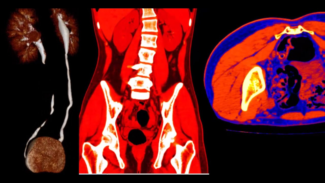 Como Se ven Tus Órganos por Dentro