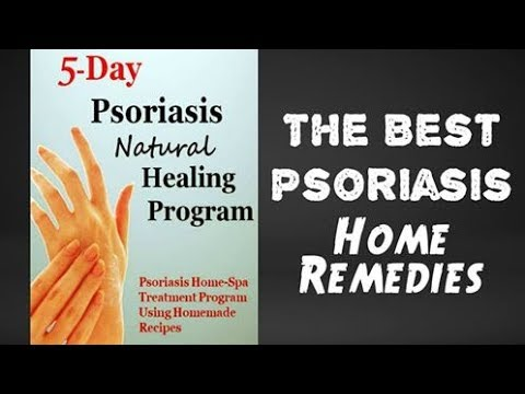 The Best Psoriasis Home Remedies - How to Get Rid of Psoriasis (2018)