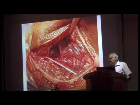 Total Hip Replacement: Role of Osteotomies:   Dr. N K Magu