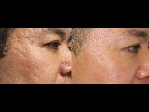 Correction of severe facial scarring