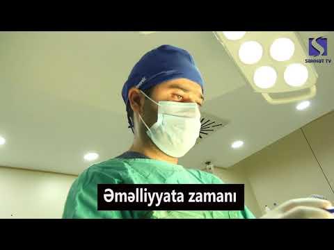 Dr. İlkin Həşimov  //  Ümumi Cərrahiyyə Uzman